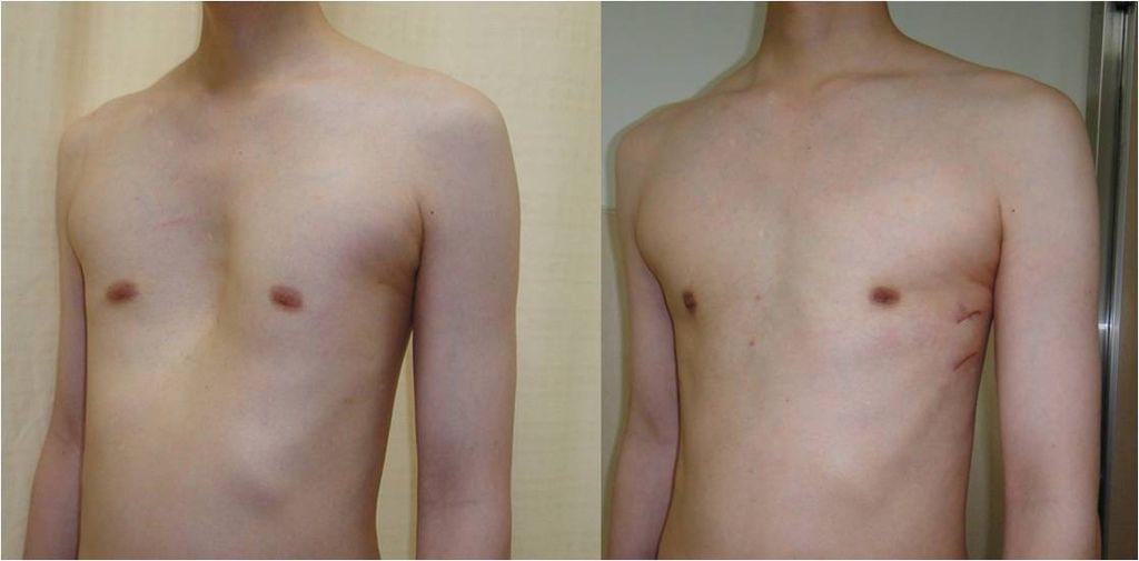 成人不對稱型漏斗胸的矯治