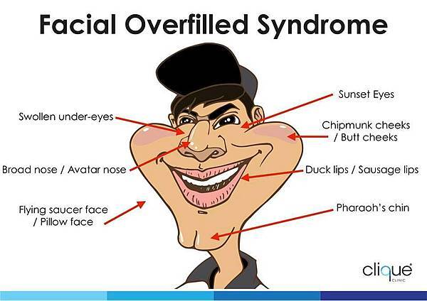 Facial Overfilled Syndrome_Male