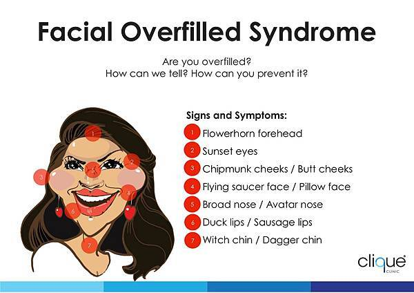 Facial Overfilled Syndrome_Female