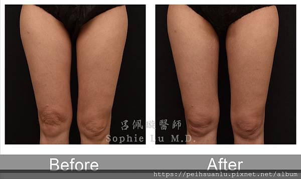 體內電波改善膝蓋皺紋和膝蓋內側溶脂-有logo