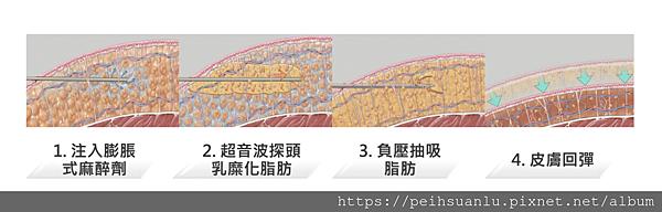 威塑抽脂過程