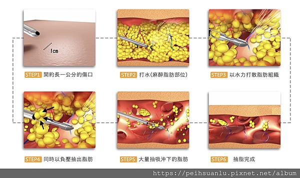 水刀抽脂過程