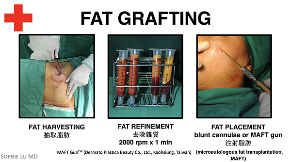 AMWC_Fat Grafting.png