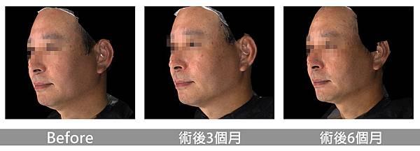 呂佩璇醫師美國音波拉提_男性.jpg