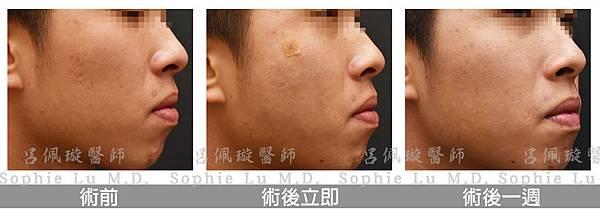 痘疤手術_皮下疤痕剝離術呂佩璇醫師_右臉.jpg