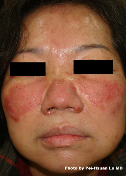 Facial Rash new.jpg