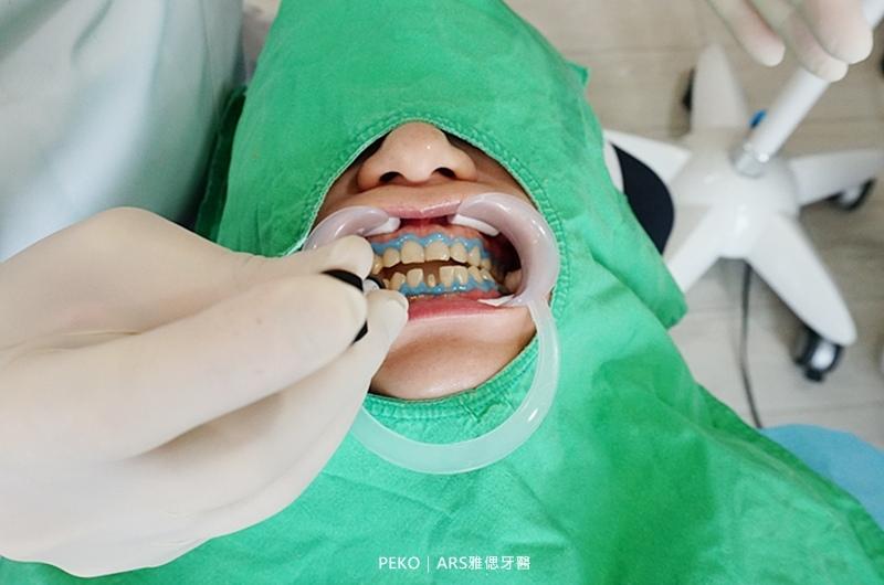 雅偲牙醫.台北牙醫推薦.台北牙醫診所.牙齒美白.冷光美白.全瓷冠.整牙.全瓷冠 價格.全瓷冠假牙.美白牙齒.