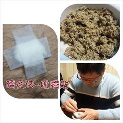 臍灸法~肚臍貼1