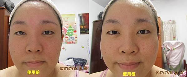 0710使用前後(正面).jpg