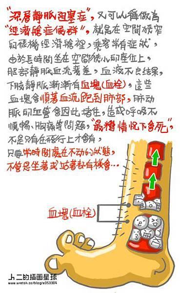 高抬貴腿 -深層靜脈栓塞症-5