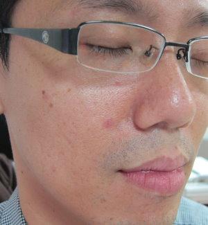 全臉1-IMG_2136.JPG