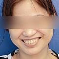 4Post_smile1