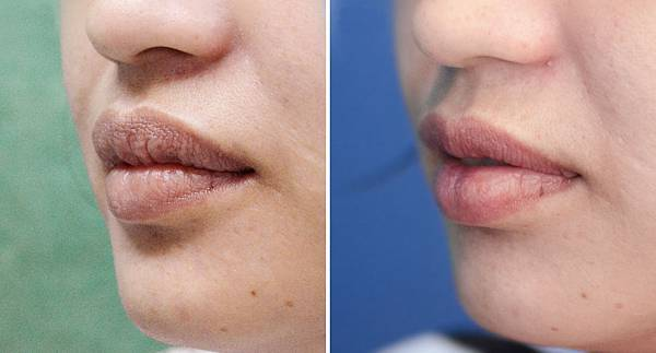 Lip reduction_compare_3