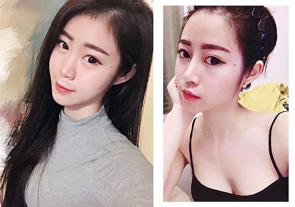 隆鼻 謝東穎4