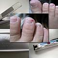 假腳指甲  受傷的蠶寶寶腳指頭
