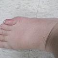 2009.12.11 水腫越來越明顯
