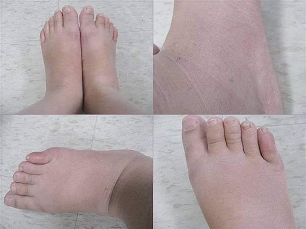 34週 開始水腫的腳..