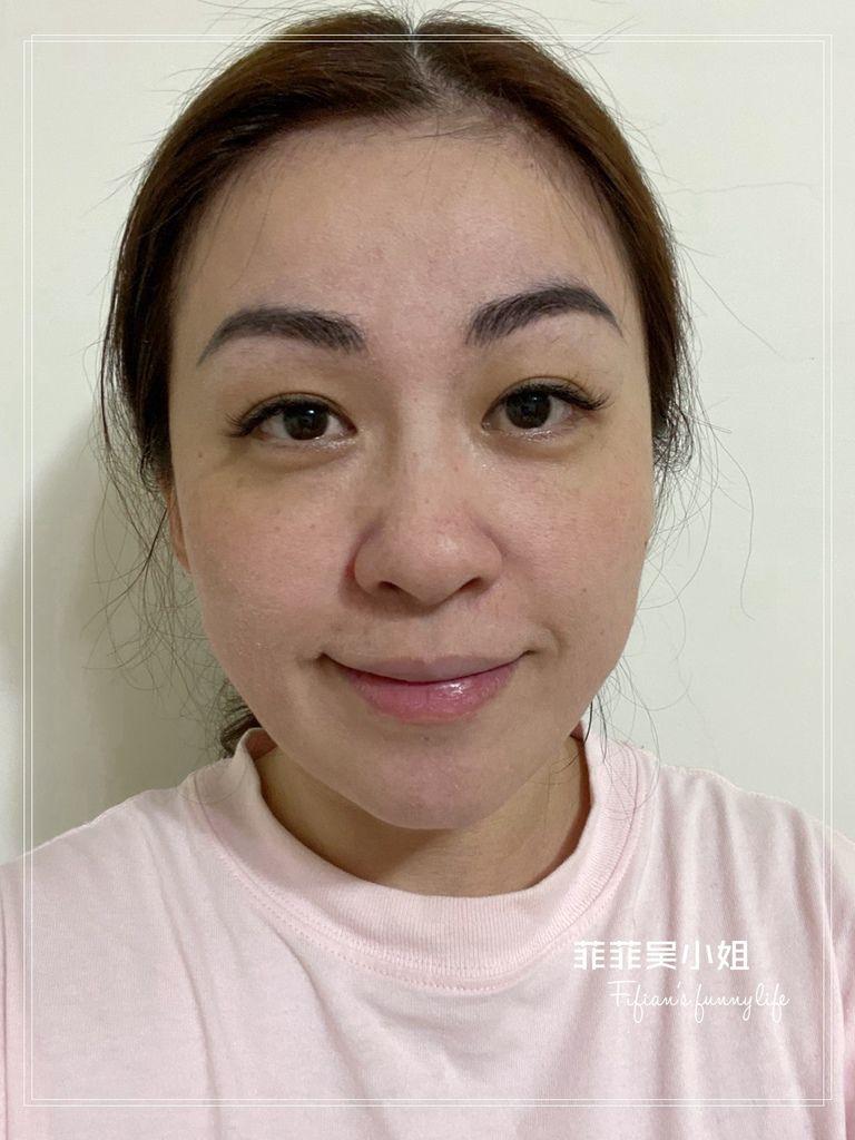 美仕媞醫美診所 DOE光繞雷射