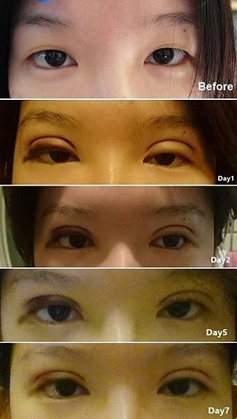 雙眼皮 雙眼皮手術 縫雙眼皮 晶緻