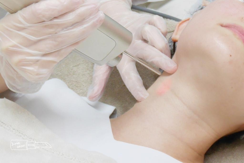 雅偲皮膚科 4D美塑光波拉提 嘴邊肉 法令紋