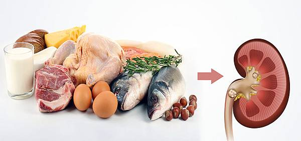High-Protein-Diet-Cause-Kidney-Stones1.jpg