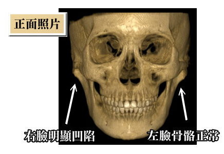 韓式微創削骨後遺症風險