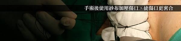 推薦狐臭手術醫師