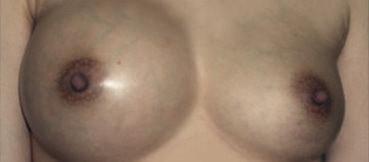 奧美定隆乳併發症