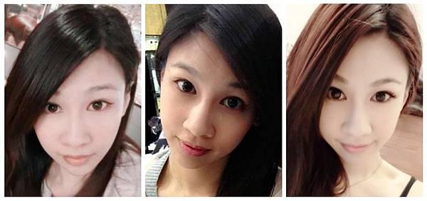 三段式隆鼻與韓式隆鼻術前照片