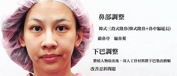 韓式隆鼻手術權威醫師醫生推薦