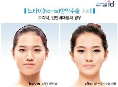 韓國微創削骨手術