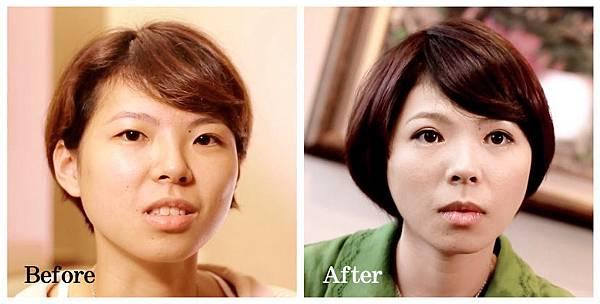 01縫雙眼皮手術.jpg