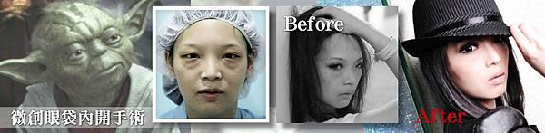 微創外開眼袋手術台北推薦醫師診所