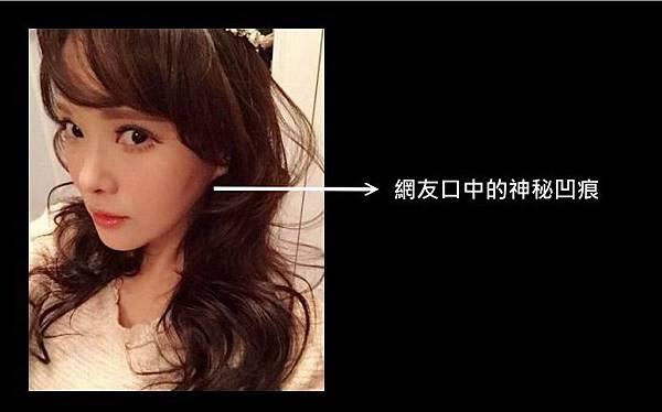 02伊能靜整形失敗.jpg