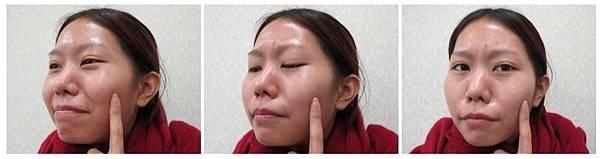05下顎骨角削骨手術