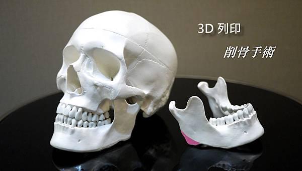 06.3D列印削骨手術.jpg