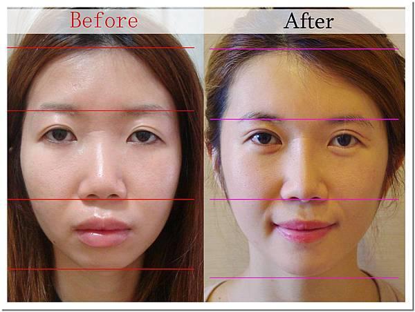 06王子杰醫師自體脂肪移植豐頰補臉