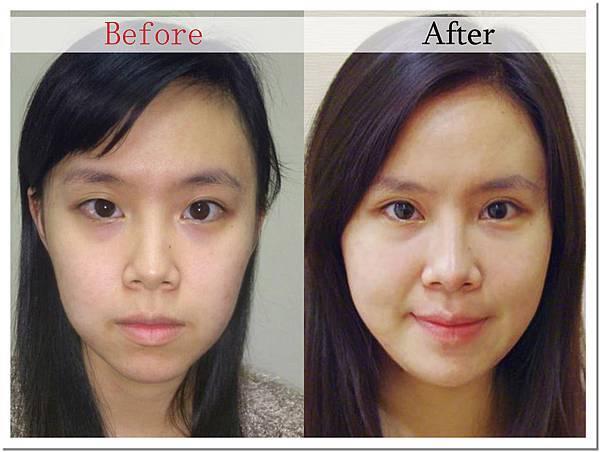 07王子杰醫師自體脂肪移植補臉豐頰案例