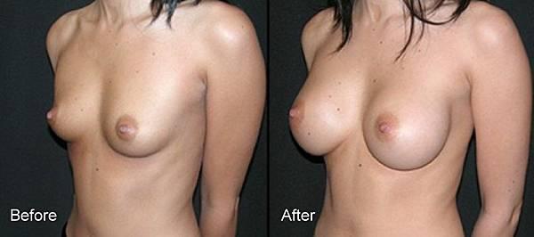 007隆乳手術術前術後照片.jpg