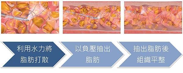 03.台北微粹脂雕儀抽脂手術.jpg
