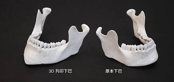 05.3D列印下巴推薦醫師診所.jpg