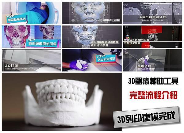 06.3D列印墊下巴手術步驟.jpg