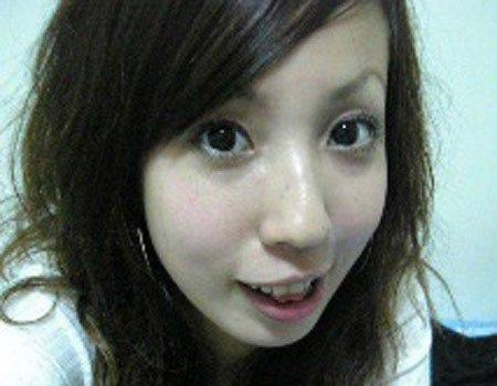 02.張艾亞大學生小白整形整牙前照片.jpg