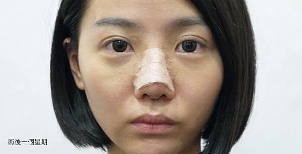 07隆鼻手術術後腫脹及歪.jpg