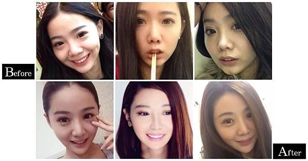 12隆鼻手術前後差異照片分享.jpg