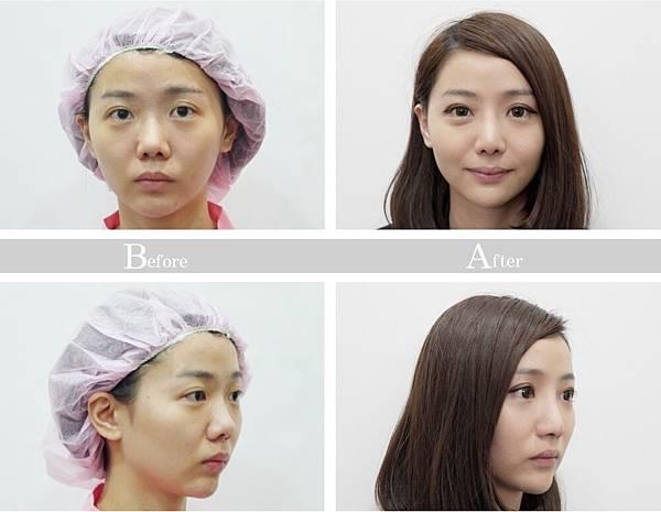 結構式隆鼻術前術後照片