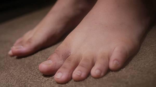 02.腳趾頭看起來很髒.jpg