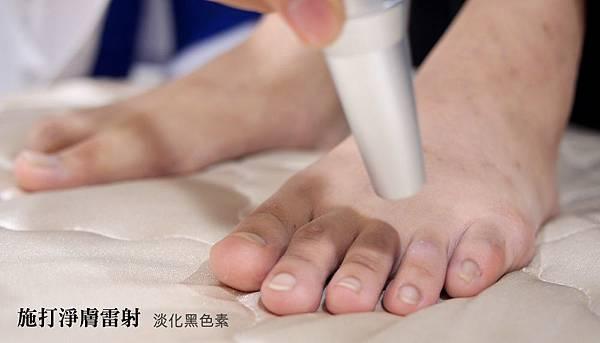 04.施打淨膚雷射淡化腳趾頭黑色素.jpg