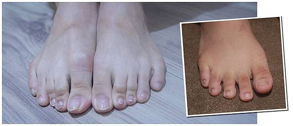07.腳趾頭黑黑治療後前後比對