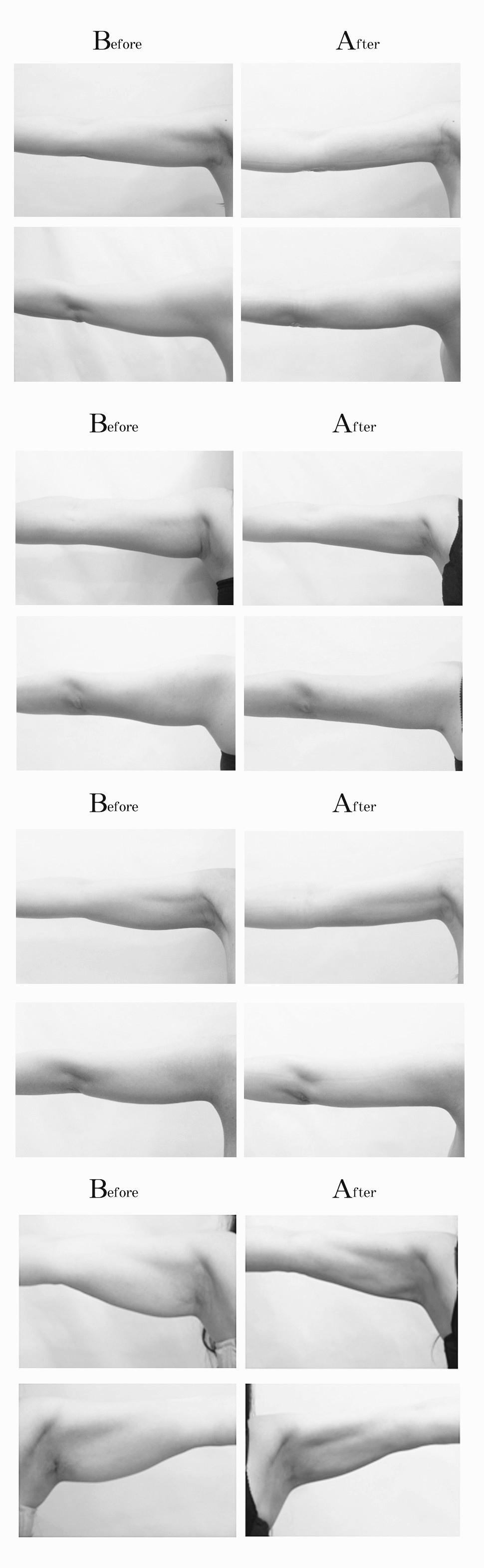 5.手臂腹部副乳抽脂手術術前術後效果.jpg
